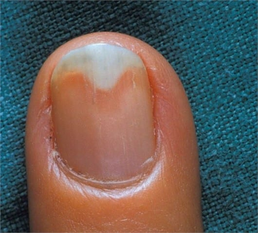 Onychomycosis and Onycholysis
